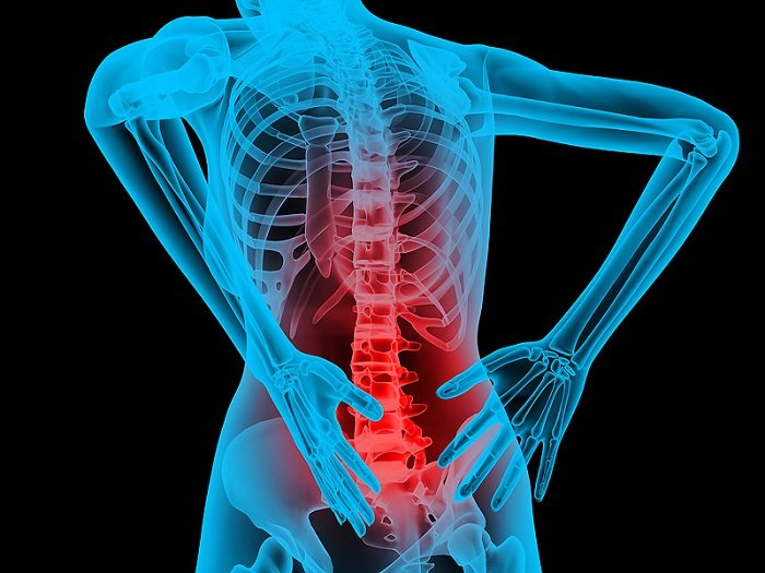 Back Pain From A Slip